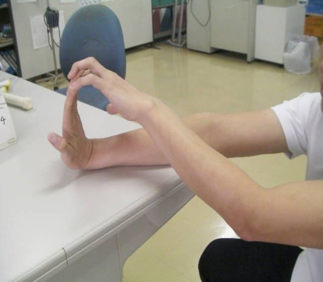 фото руки после инсульта контрактуры нужно